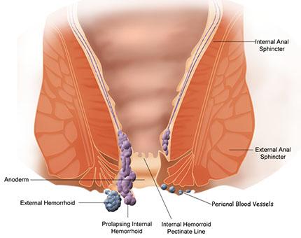 haemorrhoids