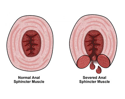rectal fissure